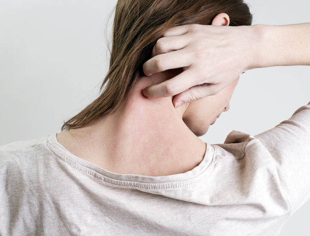 Close up view of woman with chafing symptoms on her neck.